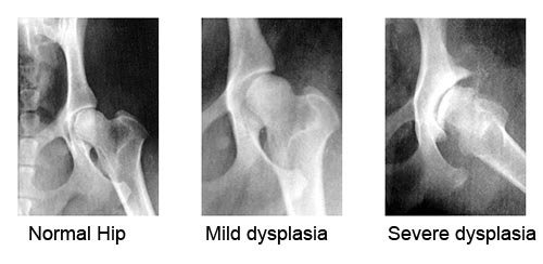 hip-dysplasia-in-dogs
